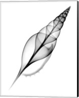 Tibia, Martin's X-Ray Fine-Art Print